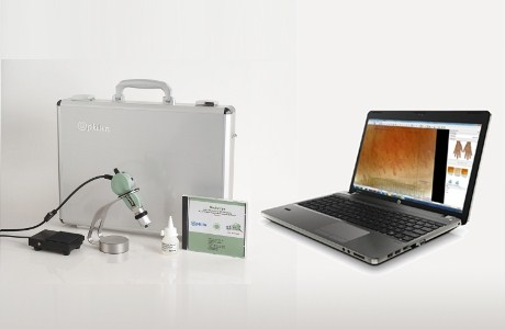 Optilia Digital Capillaroscopy System, Pre-installed with PC or Laptop